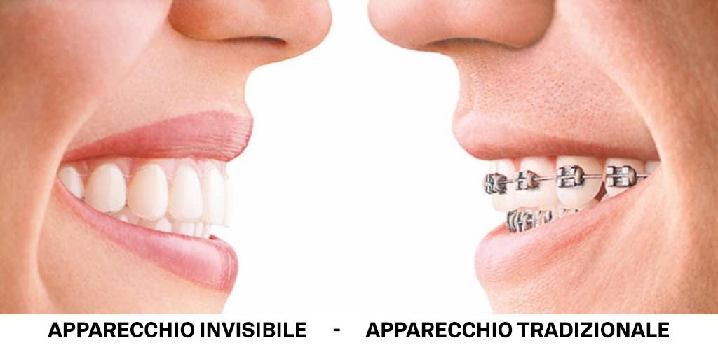 Apparecchio invisibile vs Apparecchio tradizionale